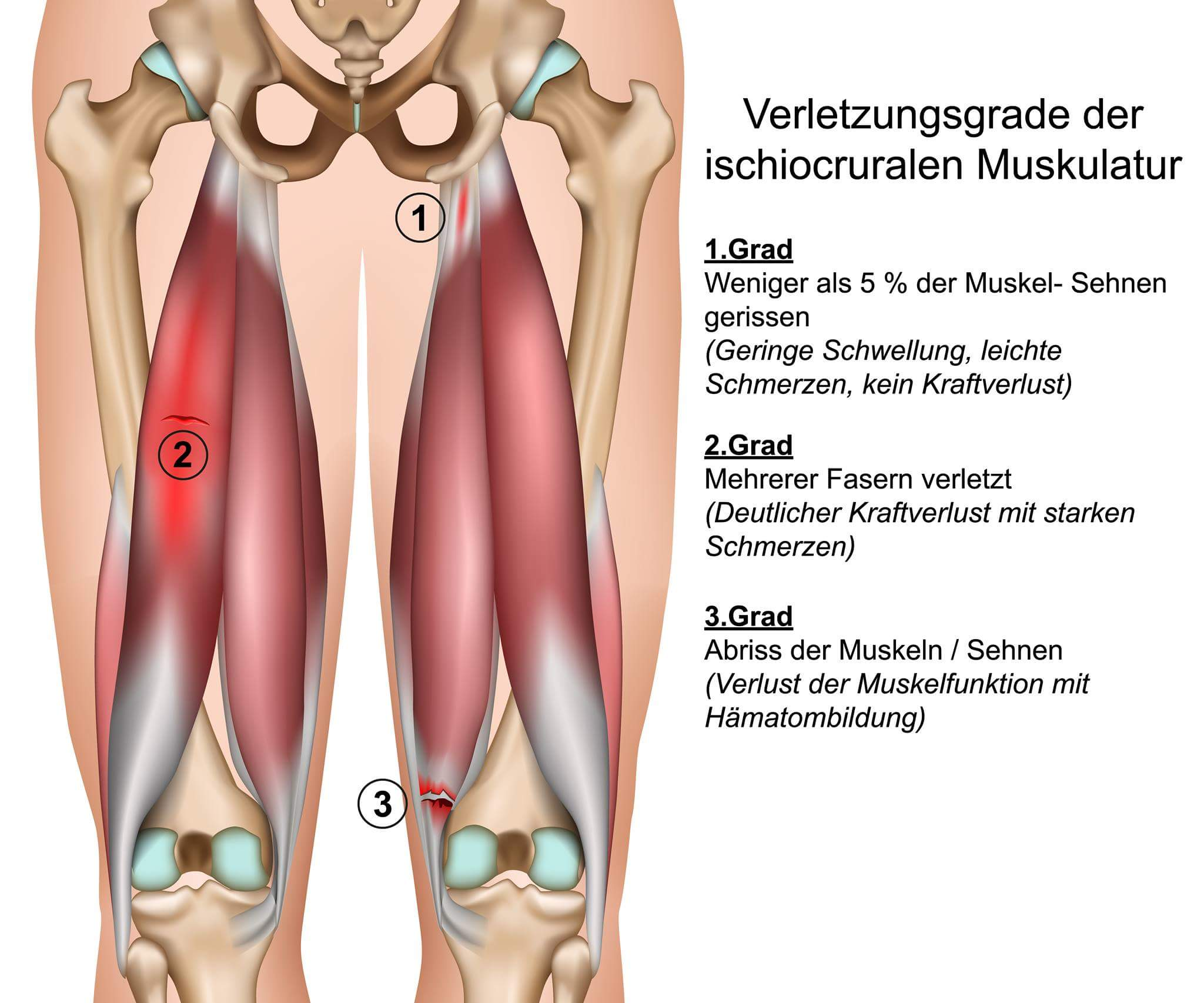 Prävention von Hamstringsverletzungen im Profifußball   Sport ...