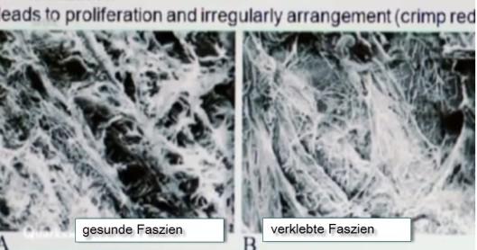 faszien-vergleich